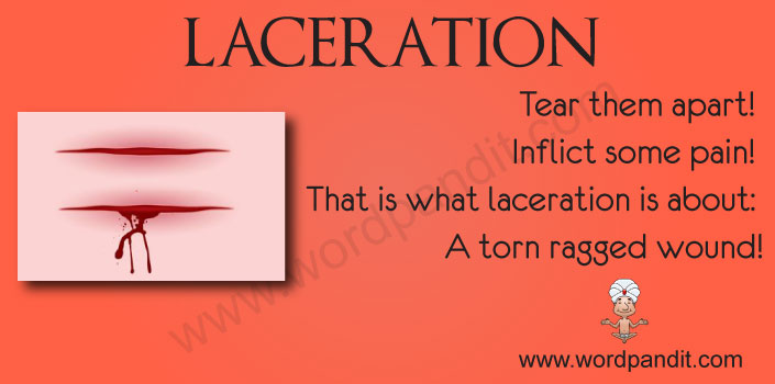 picture vocabulary for laceration